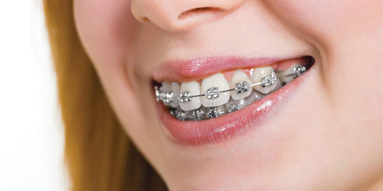 smile dental braces