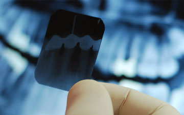Dental Xray dubai