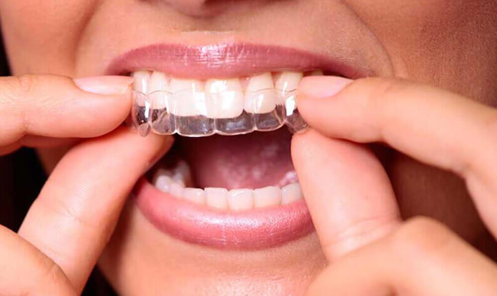 eon smile dental